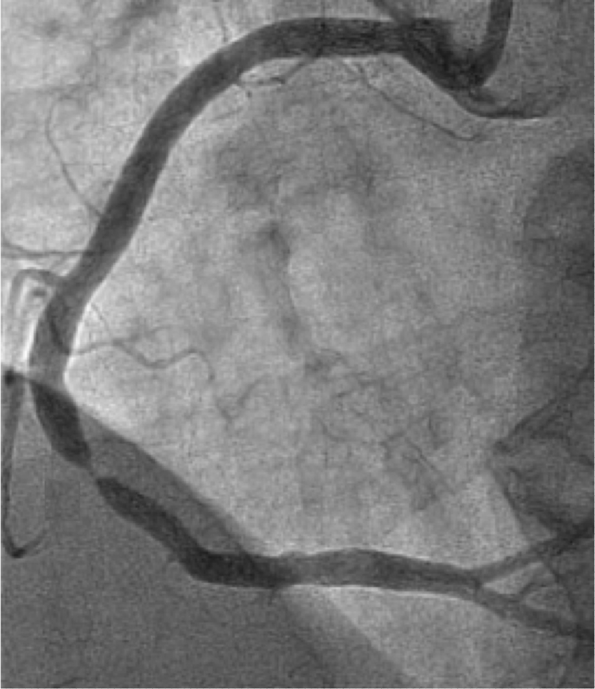 Medshr-Angiogram-case-discussion